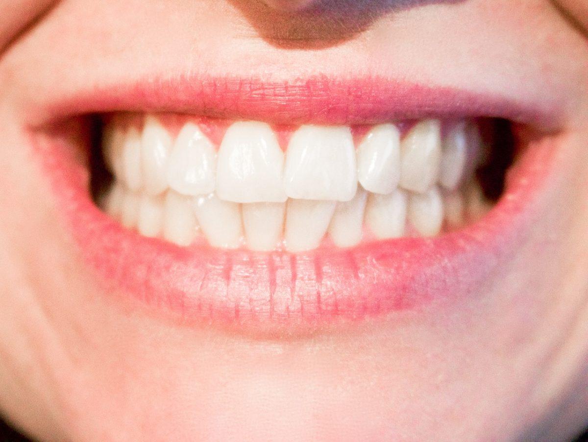 Dzisiejsza technologia wykorzystywana w salonach stomatologii estetycznej może sprawić, że odzyskamy śliczny uśmieszek.