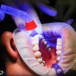 Złe postępowanie odżywiania się to większe niedostatki w ustach oraz również ich brak